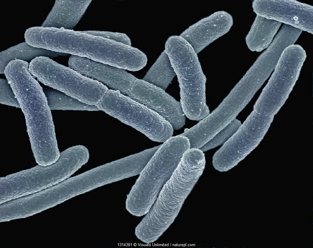(Escherichia coli) Bacteria, commonly known as E. coli, can cause food poisoning when found in above average numbers. SEM X40,000