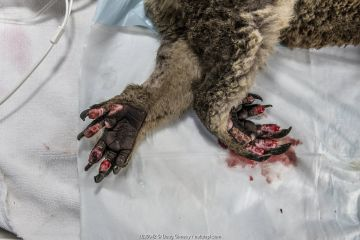 Burnt feet of anaesthetised female Koala (Phascolarctos cinereus) as she is treated, at a mobile wildlife triage centre at Bairnsdale, which was set up to treat animals as a result of the bushfires that have been ravaging Australian late 2019 / early 2020. If left untreated Injuries like this mean they cannot climb a tree so will starve and as they can't eat, they often don't get any fluids and so dehydrate - which also means the wounds won't heal. Bairnsdale, Victoria, Australia. January 2020. Editorial use only