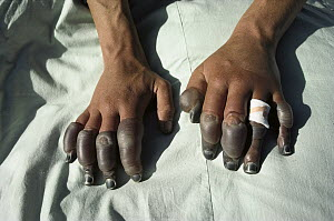 Andy Henderson's frostbitten fingers, photographed in Lhasa, one week after descending the North Face of Mt Everest, Tibet  -  Colin Monteath