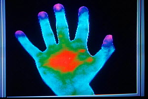 Thermograph of human hand  -  John Downer