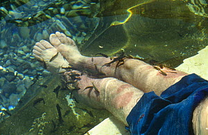 """Carp feeding on legs of person suffering from Psoriasis to treat their disease, part of the BBC television series """"Supernatural"""", Turkey, 1999 - Susan McMillan"""