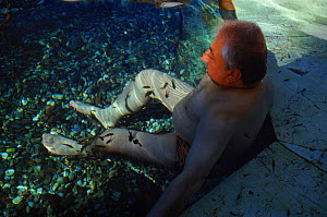 Carp feeding on legs of person suffering from Psoriasis to treat their disease, Turkey - Susan McMillan