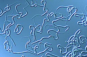 Roundworm {Brugia malayi} cause of human filariasis, Magnification x40  -  SINCLAIR STAMMERS