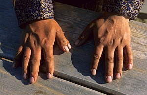 Hands of a buriat shaman, showing deformity of two thumbs on right hand, Olhkon Island, Baikal lake, Siberia, Russia, June 2000 - Eric Baccega