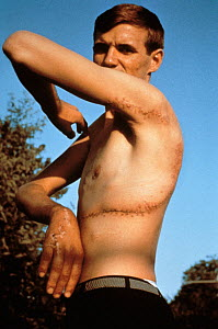 Rodney Fox shows his scar from attack by Great White Shark when he was badly bitten around the chest and arm in December 1963. South Australia. Model released. - Jeff Rotman