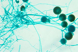 Mold (Rhizopus) sporangia and hyphae. LM. - Visuals Unlimited