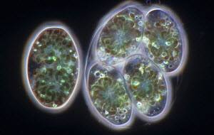 Living Glaucocystis Cyanobacteria (Cyanophyta or Glaucophyta sp) living as endosymbionts in colorless Green Algae (Chlorophyta). Darkfield, LM X320.  -  Visuals Unlimited
