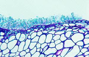 Cross-section of a Peach leaf infected with Peach leaf curl showing asci of the (Taphrina deformans) fungus. LM X80.  -  Visuals Unlimited