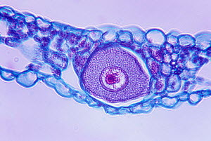 Cross-section of the unicellular sorus of the fungal pathogen (Synchytrium decipiens) LM X130.  -  Visuals Unlimited