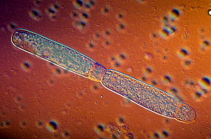 Gregarine parasitic Protozoa sporonts in asexual reproduction. DIC, LM X100.  -  Visuals Unlimited