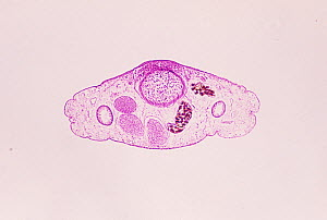 Cross-section of a Chinese liver fluke (Clonorchis sinensis), frontal region. LM X20. - Visuals Unlimited