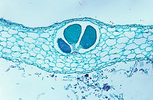 Cross-section of a Hornwort (Anthoceros sp) thallus and antheridia. LM X25. - Visuals Unlimited