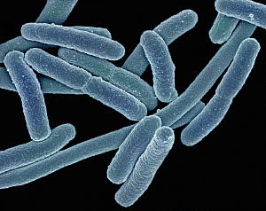 (Escherichia coli) Bacteria, commonly known as E. coli, can cause food poisoning when found in above average numbers. SEM X40,000  -  Visuals Unlimited
