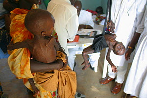 Malnutrition in Africa due to food shortage due to drought and bad medical services. MSF (Doctors Without Borders) has set up this supplementary feeding center in Nigeria, September 2008  -  Visuals Unlimited