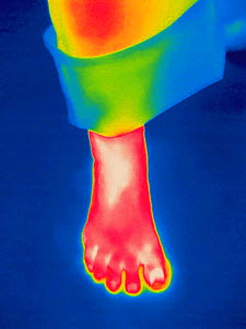 Thermogram - Adult female's foot - The colours show temperature variation. The temperature scale runs from white (warmest) through red, yellow, green and cyan, blue and black (coldest) - Visuals Unlimited