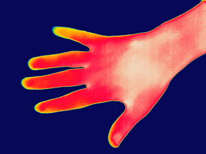 Thermogram of a human hand. The colours show temperature variation with the temperature scale running from white (warmest) through red, yellow, green and cyan, blue and black (coldest).  -  Visuals Unlimited