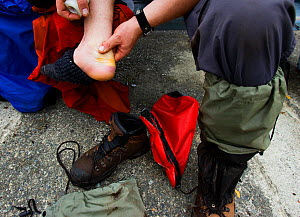 A person massaging a blistered and bruised foot. The West Coast Trail, Pacific Rim National Park, Vancouver Island, Canada, September. - Matthew Maran