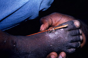 Removing Guinea worm (Dracunculus medinensis) from foot - parasitic nematode that causes guinea worm disease in people, Benin.  -  Daniel Heuclin