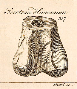 Copperplate print of human scrotum by Proud in R. Brookes 1763 'The Natural History of Waters, Earths, Stones, Fossils and Minerals etc.'; it seems to have been copied directly from Plot's 1677 plate...  -  Paul D Stewart