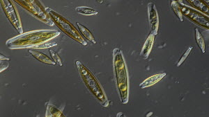 Microscope footage of photosynthetic diatoms moving by cilliate action.  -  SINCLAIR STAMMERS
