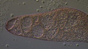Ciliate protozoan (Blepharisma japonicum) swimming through clumps of bacteria.  -  SINCLAIR STAMMERS