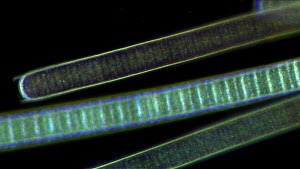 Timelapse of filaments of Oscillatoria, a type of Blue green algae gliding over each other, filmed using differential interference contrast.  -  SINCLAIR STAMMERS