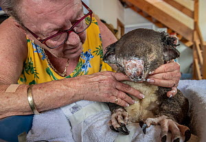 ?Sue Swain looks at the bush fire victim koala (Phascolarctos cinereus) named 'Sooty' who she has just applied burn cream to. 'Sooty' was very badly burnt during the Taree bushfires (NSW) in Novem...  -  Doug Gimesy
