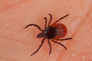 Tick (Ixodida sp) on skin, a vector for Lyme Disease, Q Fever, and Tick-borne Encephalitis. Norway. May.  -  Pal Hermansen