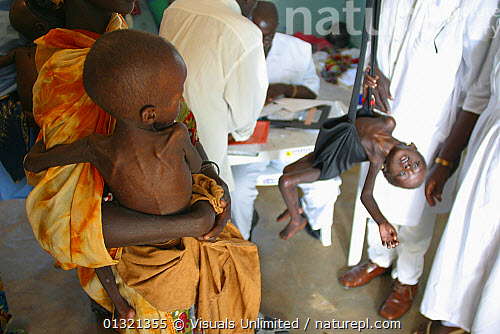 Malnutrition In Africa Due To Food Shortage Drought And Bad Medical Services MSF Doctors Without Borders Has Set Up This Supplementary Feeding