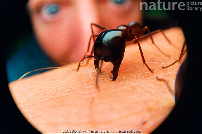 African driver / Siafu / Safari ant biting {Dorylus/ Anomma species). Species is non-stinging, but jaws can tear human flesh. East Africa. Blind  ,  AFRICA,BITES,CLOSE UPS,DANGEROUS,EAST AFRICA,FORMICIDAE,HORRIFIC,HUMAN,HYMENOPTERA,INSECT,INSECTS,INVERTEBRATES,JAWS,KILLER ANTS,MACRO,,MD,PEOPLE  ,  Martin Dohrn