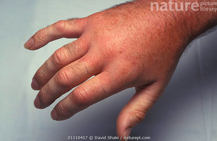 Hand swollen due to sting by Hornet {Vespa crabro} Dorset, UK, WOUNDED,EUROPE,ENGLAND,INSECT,POISONOUS,MAN,INSECTS,PEOPLE,BRITISH,HANDS,HORNETS,SWELLING,INVERTEBRATES,HYMENOPTERA, David Shale