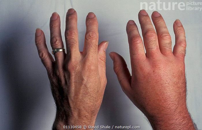 Hand (right) swollen due to sting from Hornet {Vespa crabro} next to normal hand, DORSET,HORNETS,BRITISH,UK,EUROPE,TWO,WOUNDED,ENGLAND,INSECTS,COMPARISON,HANDS,POISONOUS,INSECT,MAN,PEOPLE,UNITED KINGDOM,INVERTEBRATES,HYMENOPTERA, David Shale