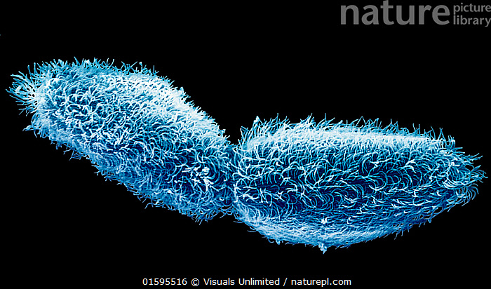 Ciliate protozoa (Paramecium) undergoing fission. First the micronuclei divide and redistribute throughout the cytoplasm and then the macronucleus forms two distinct halves. SEM X78  ,  fission,cell division,cell,diving,asexual,reproduction,binary,paramecium,protozoa,protozoan,protist,cilia,ciliate,microbiology,zoology,sem,em,scanning electron micrograph,electron micrograph,micrograph,microscopic,microscopy,science,scientific,horizontal,color image,photography,,,,Reproducing,Reproduce,Reproduction,Cutout,Plain Background,Black Background,Close Up,Magnification,Microscopic,Animal,Micro Organism,Micro Organisms,Bacteria,Bacterias,Bacterium,Animal Behaviour,Behaviour,Microscopy,Asexual Reproduction,Behavioural,  ,  Visuals Unlimited